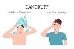 Le type avec le problème de pellicules avant et après le traitement avec un shampooing spécial Lésions cutanées fongiques Seborrh illustration stock