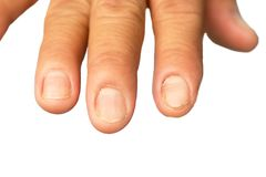 Le unghie non si preoccupano per delicato, nessuna forma e non hanno bella pelle dell'unghia fotografia stock libera da diritti