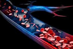 Le vene varicose si chiudono su Gambe umane su un fondo nero, illustrazione 3d royalty illustrazione gratis