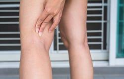 Le vene varicose sulla gamba della donna, vene normali vicino allo strato della pelle gonfiano fuori Fotografie Stock