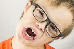 Le visage du syndrome de bas Photographie stock libre de droits