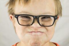 Le visage du syndrome de bas Photo libre de droits