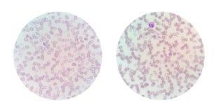 Le viste microscopiche di uno striscio di sangue sottile da malaria hanno infettato il PA Fotografia Stock Libera da Diritti