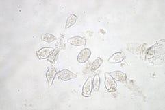 Le Vorticella est un genre de protozoan Image stock