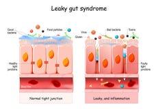 Free Leaky Gut Syndrome Royalty Free Stock Photos - 194887918