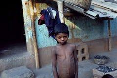 Leben im Jharia Kohlenbergwerkbereich bei Indien