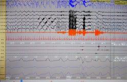 Lectura del ordenador del estudio del Apnea de sueño imagen de archivo libre de regalías