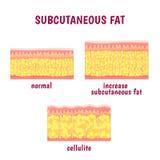Lederne Schnittschicht subkutanes Fett Lizenzfreie Stockbilder