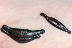 Leeches on the skin Royalty Free Stock Image