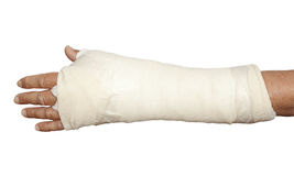 Left arm in white bandage and cast stock photos