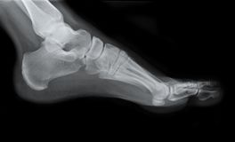 Left Foot Side X-Ray Stock Photo