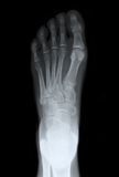 Left Foot Top Xray. Left foot looking down on top of the foot, for medical diagnosis Royalty Free Stock Image