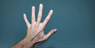 Left Hand With Broken Finger And Ganglion Cyst. Shot of a white caucasian man's left hand with a broken pinky finger that hasn't healed properly royalty free stock photos