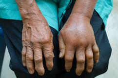 Left hand inflammation. From the green pit viperb snake bite Royalty Free Stock Photos