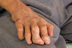 Left hand of a leprosy Stock Photos