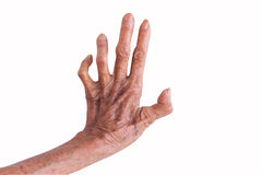Left hand of a leprosy isolated on white background royalty free stock photography