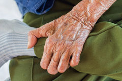 Left hand of a leprosy Royalty Free Stock Image