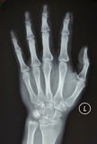 The left hand X-ray Stock Photography