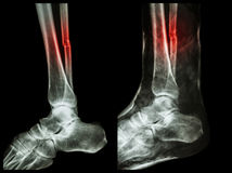 Left image : Fracture shaft of fibula (calf bone)  ,  Right image : It was splinted with plaster cast Royalty Free Stock Images