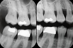 Left Periodontal X-rays Royalty Free Stock Photo