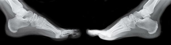 Left and Right Foot Xray. For medical and diagnostic purposes Stock Photo