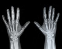 Left and Right Hand X-Ray Royalty Free Stock Images