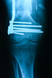Left tibiofibula fracture fixation after the operation, the fron Royalty Free Stock Images
