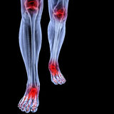 Leg. Human feet under X-rays. joints are shown in red. isolated on black royalty free stock photography