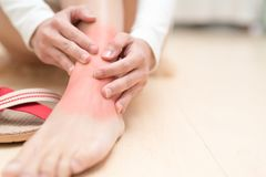 Leg ankle injury painful women touching the leg painful with red highlight on injure. healthcare and medical concept Royalty Free Stock Images