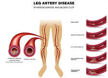 Leg artery disease, Atherosclerosis. Leg artery disease and healthy artery. Peripheral Arterial Disease, Atherosclerosis progression, narrowed leg artery and at Stock Photo