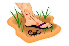 Leg bitten by a Scorpion, pain and swelling. Illustration of a Scorpion sting on the foot Royalty Free Stock Images