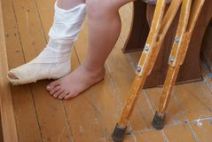 Leg of a boy in a plaster. Wooden crutches stand nearby Royalty Free Stock Photography