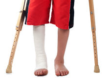 Leg fracture Royalty Free Stock Images