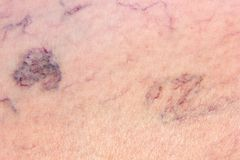 Leg full of varicose veins Stock Photos