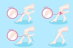 Leg hair removal concept Royalty Free Stock Photos