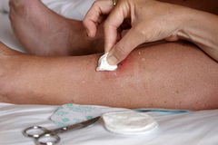 A leg injury being cleaned Royalty Free Stock Image