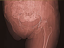 Leg inury and amputation, x ray Royalty Free Stock Photos