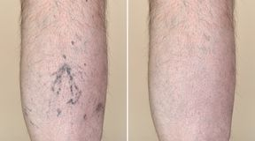 Leg of a man with varicose veins and capillaries before and after medical treatment. Part of a leg & x28;calf& x29; of the man with varicose veins and stock photos