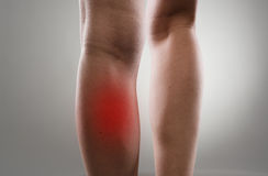 Leg pain. Injured female legs with red spots. Muscle strain and stretch treatment concept royalty free stock photos