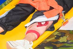 Leg patient injured on stretcher yellow for emergency paramedic service Injury with medical equipment in training emergency rescue Stock Images