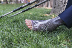 Leg in plaster of a boy and crutches. On the grass under sunlight Royalty Free Stock Image