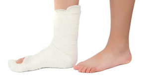 Leg in a plaster cast. On a white background Royalty Free Stock Image