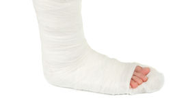 Leg in a plaster cast. On a white background Royalty Free Stock Images