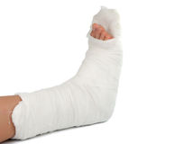 Leg in a plaster cast royalty free stock images