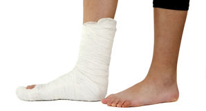 Leg in a plaster cast Stock Image