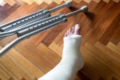 Leg in plaster Royalty Free Stock Image
