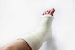 Leg in plaster Royalty Free Stock Images