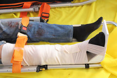 Leg With Splint Stock Photos