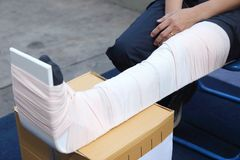 Leg with a splint Royalty Free Stock Photography