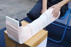 Leg with a splint Royalty Free Stock Photo